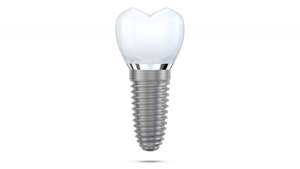 Dental implant model of molar tooth as a concept of implantation teeth and dental surgery. 3d rendering illustration isolated on white background.