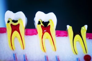 Dental tooth model showing teeth decay, gums and root canal.